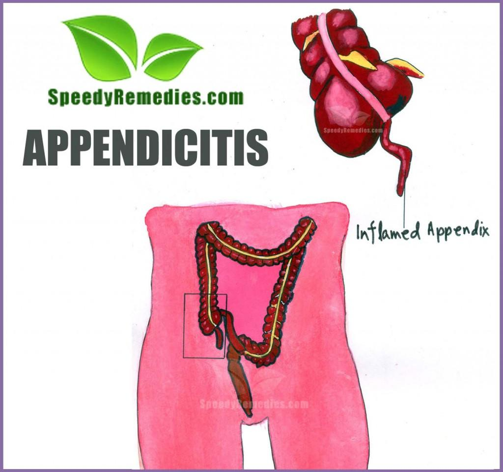 Home Remedies For Appendicitis | Home Remedies by ...