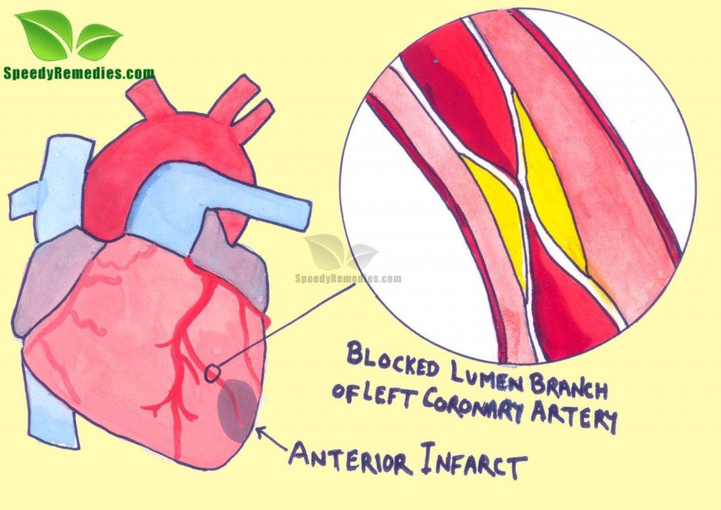 home remedies for coonary heart disease