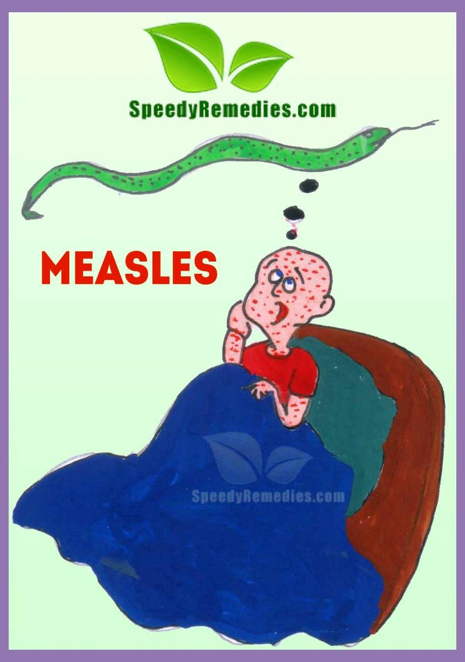 Home Remedies For Various Diseases