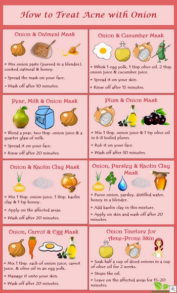 Onion masks