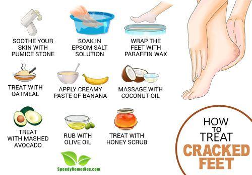 heal cracked feet